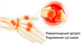 Ревматоидный артрит. Поражения суставов