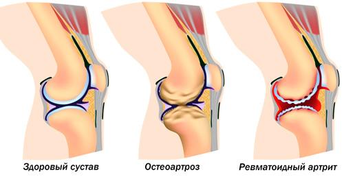 здоровый коленный сустав, пораженный остеоартрозом и артритом