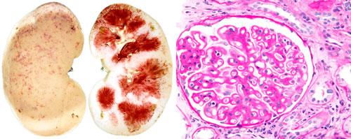 ревматоидный гломерулонефрит почек