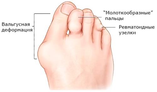 деформация стопы при ревматоидном артрите