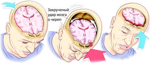 удар мозга о череп при травме готовы