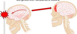 сотрясение головного мозга при удвре