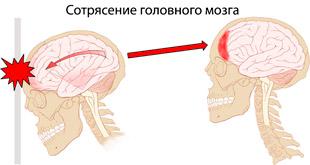 сотрясение головного мозга при ударе