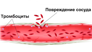 поврежденный сосуд и тромбоциты