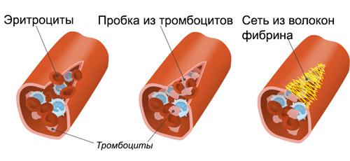 процесс свертывания крови при помощи тромбоцитов