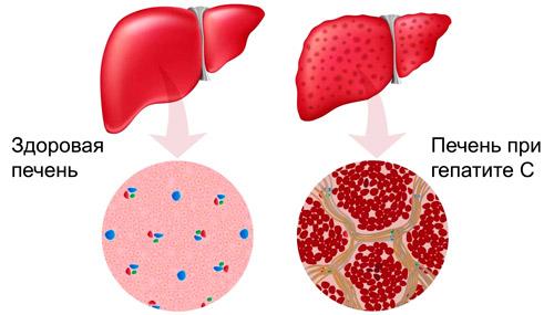 здоровая печень и при гепатите