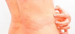 аллергическая крапивница на коже