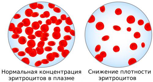 концентрация эритроцитов у здорового человека и при анемии