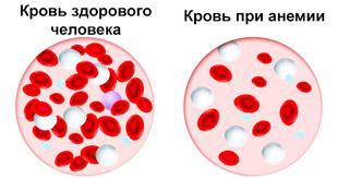 состав крови здорового человека и при анемии