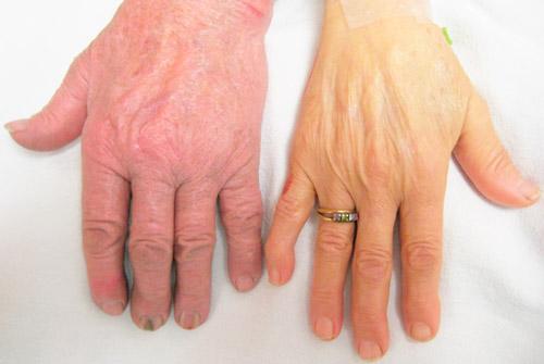 цвет кожи здорового человека и при анемии