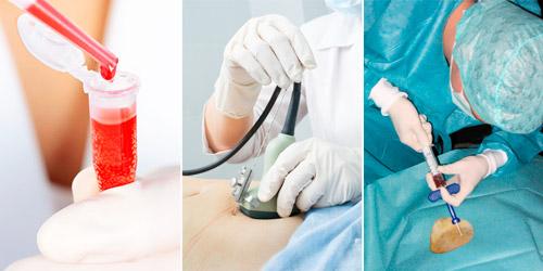 методы диагностики анемии