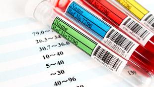 лабораторные пробирки для анализа