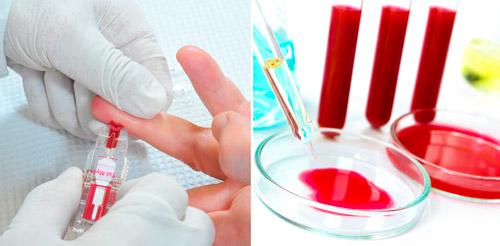 общий анализ и биохимия крови