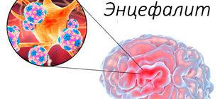воспаление мозга при энцефалите