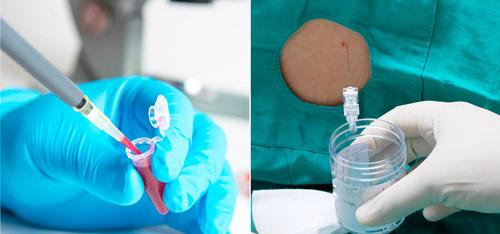 анализ крови и ликвора для диагностики болезни