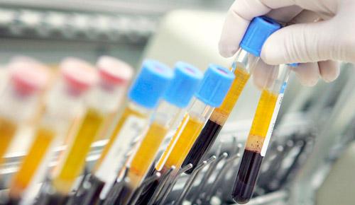 пробирки с кровью для лабораторного анализа