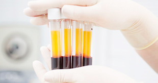 пробирки с кровью для анализа