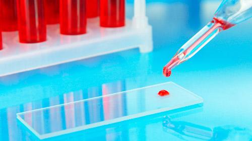 кровь на предметном стекле в лаборатории