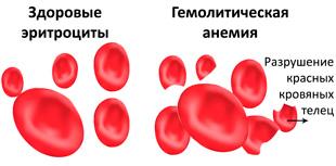 здоровые эритроциты и при гемолитической анемии