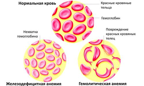 изменение кровяных телец при различных видах анемии