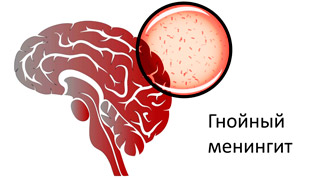 гнойный менингит мозга от проникновения бактерий