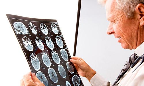 врач осматривает снимки мозга