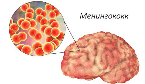 менингококковая инфекция в мозге