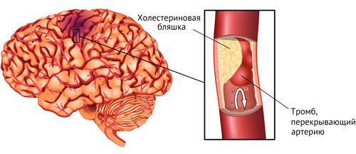 тромб как причина инсульта