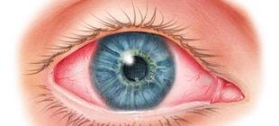 покраснение глаза кератит