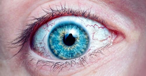 покраснение сосудов глаза