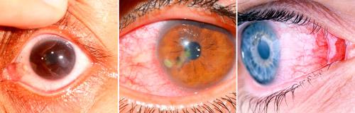 разные виды кератита глаза
