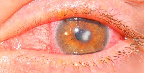 поражение глаза инфекцией