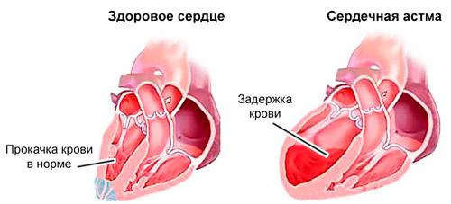 здоровое сердце и при сердечной астме