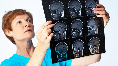 врач изучает мрт мозга