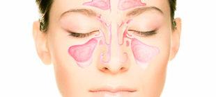 воспаление околоносовых пазух у женщины