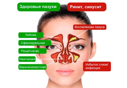 здоровые носовые пазухи и при синусите