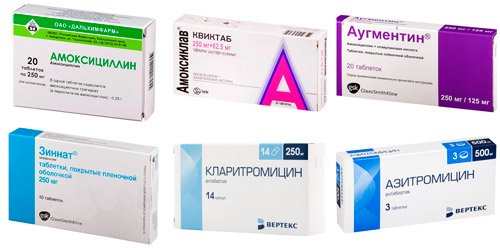антибактериальные лекарства при синусите: Амоксициллин, Амоксикар, Аугментин, Зиннат, Кларитромицин, Азитромицин
