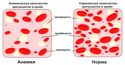 нормальный состав крови и при железодефицитной анемии