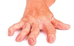 кисть руки, пораженная артритом