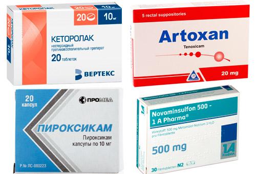 обезболивающие препараты: Кеторолак, Артоксан, Пироксикам, Напроксен