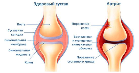 здоровый сустав и пораженный артритом