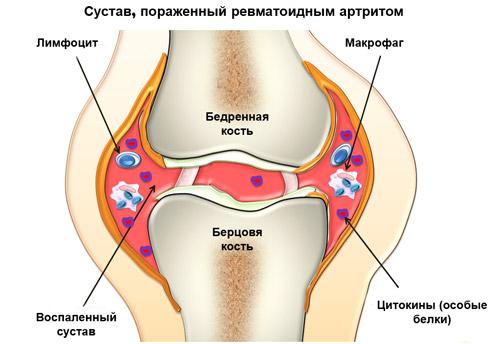 поражение сустава ревматоидным артритом