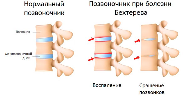 здоровый позвоночник и при артрите Бехтерева