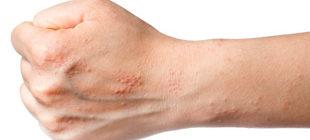 кожный дерматит у взрослых