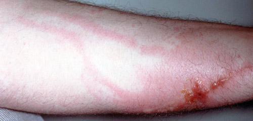 инфекционный дерматит на поврежденной коже