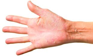 Дисгидротическая экзема кистей рук – лечение народными методами или медикаментами, причины появления на стопах, кистях рук и на пальцах ног
