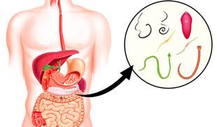 глисты в организме человека