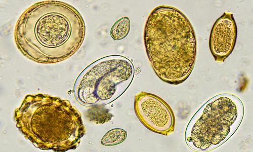 яйца глистов под микроскопом