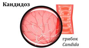 грибок возбудитель кандидоза