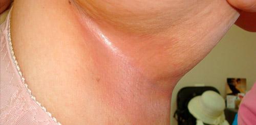 интертригинозный кандидоз крупных складок кожи